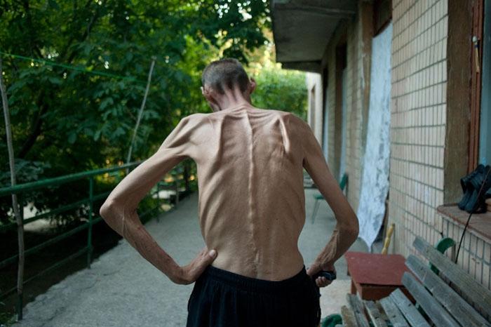 Сколько живут с туберкулезом