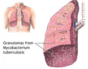 гранулемы диссеминированного туберкулеза