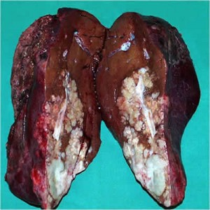 Рак печени лечение
