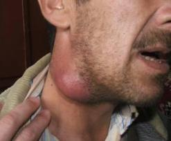 Туберкулез лимфоузлов лечение