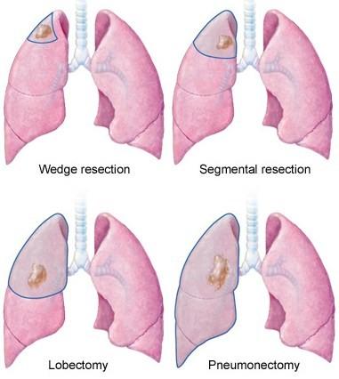 операция на легких