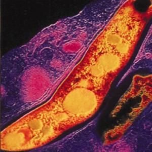 антитела к туберкулезу