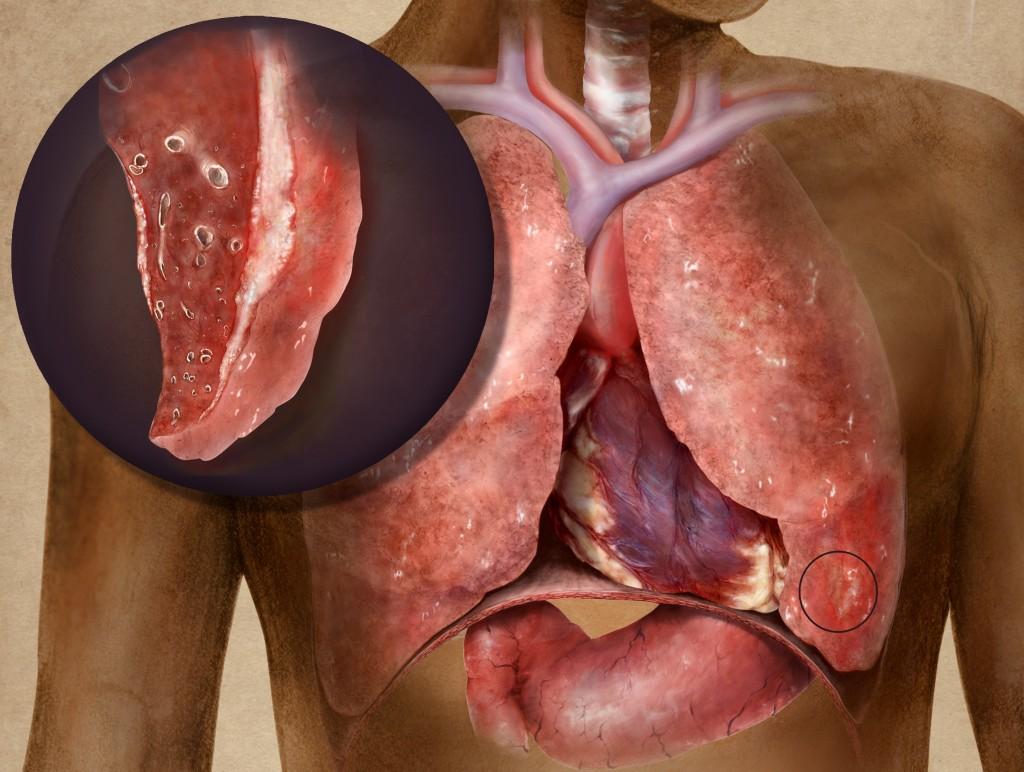 рост опухоли и воспаление плевры, которая окружает легкие