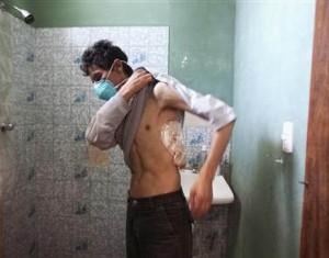 как умирают от туберкулеза