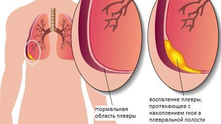 ограниченное или диффузное воспаление плевры, протекающее с накоплением гноя в плевральной полости