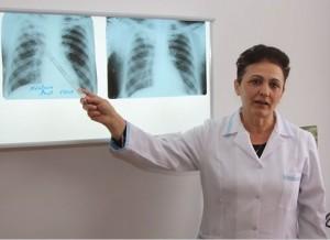 Сколько делается анализ на туберкулез?