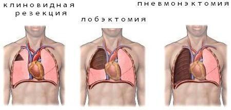 лобэктомия туберкулез