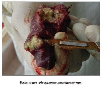 туберкулема риск